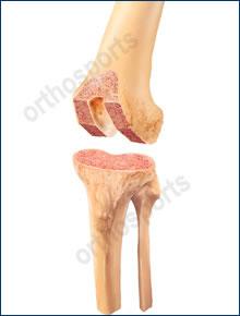 knee bonecuts