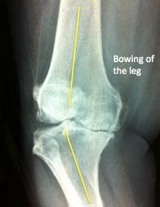 knee arthritis varus knee bowed leg bone on bone