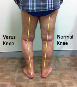 knee arthritis varus knee clinical photograph