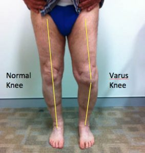 knee arthritis varus knee clinical photograph front view