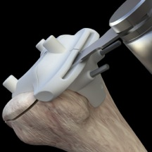 total knee replacement patient matched surgery femur cutting block