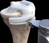 total knee replacement patient matched surgery tibia cutting block